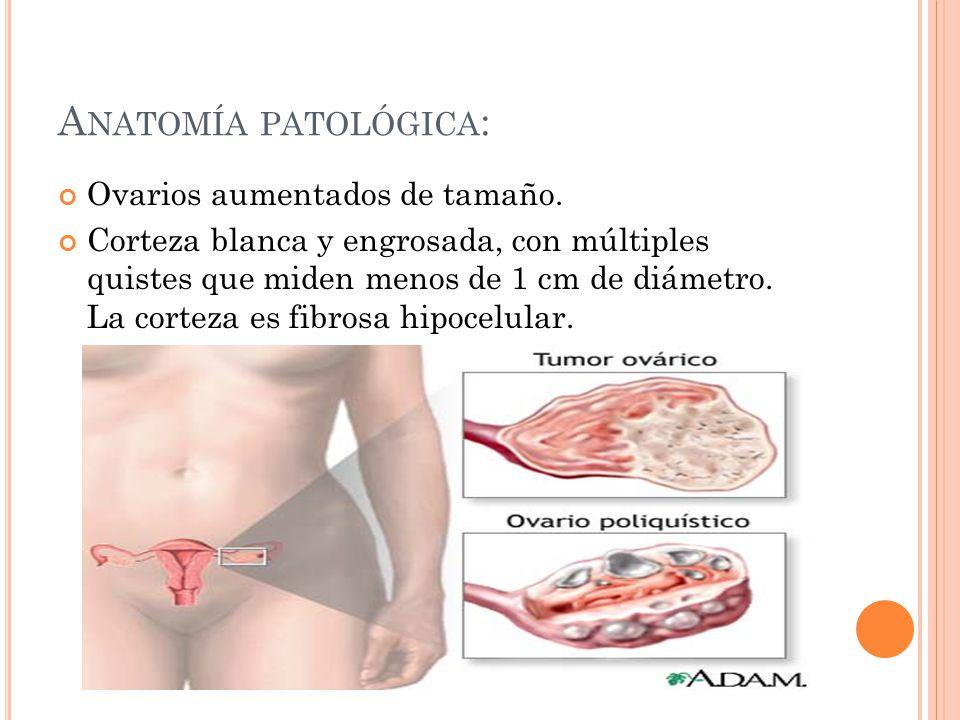 Atractivo Ubicación De Ovario Colección - Anatomía de Las ...