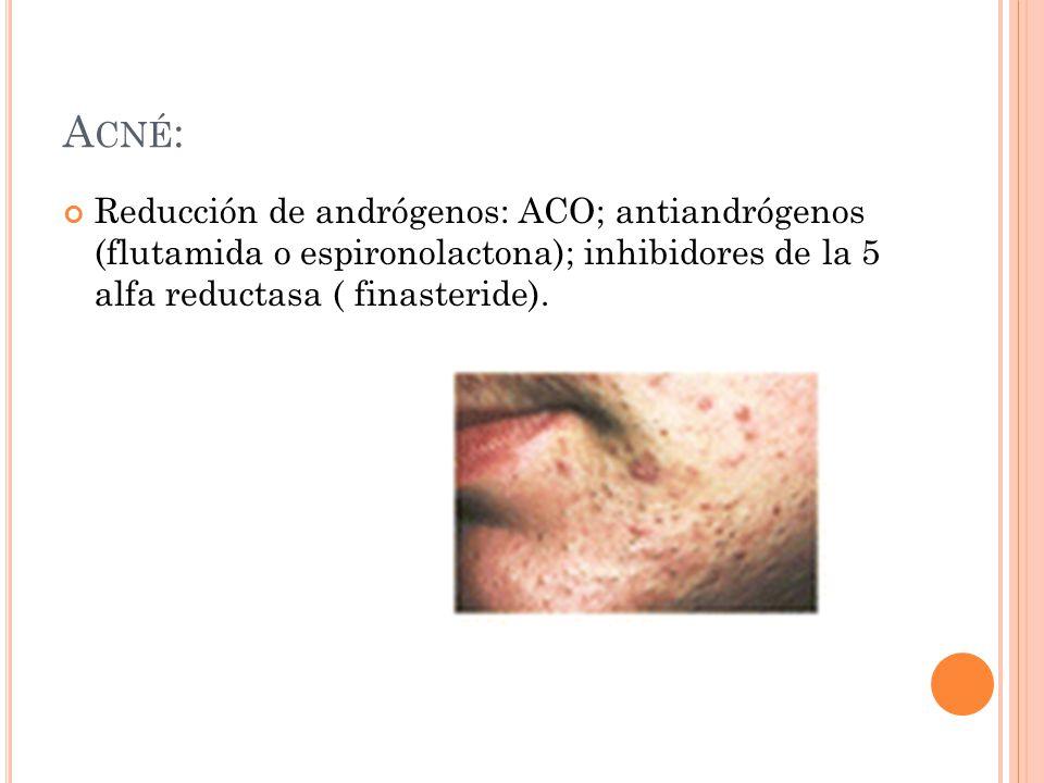 Acné: Reducción de andrógenos: ACO; antiandrógenos (flutamida o espironolactona); inhibidores de la 5 alfa reductasa ( finasteride).