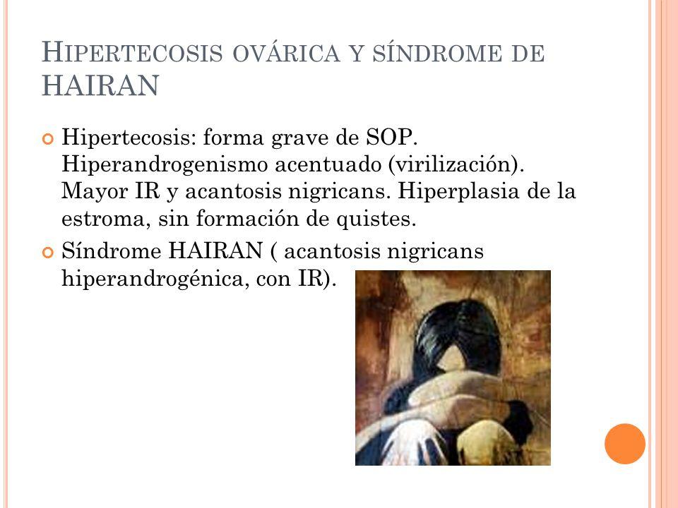 Hipertecosis ovárica y síndrome de HAIRAN