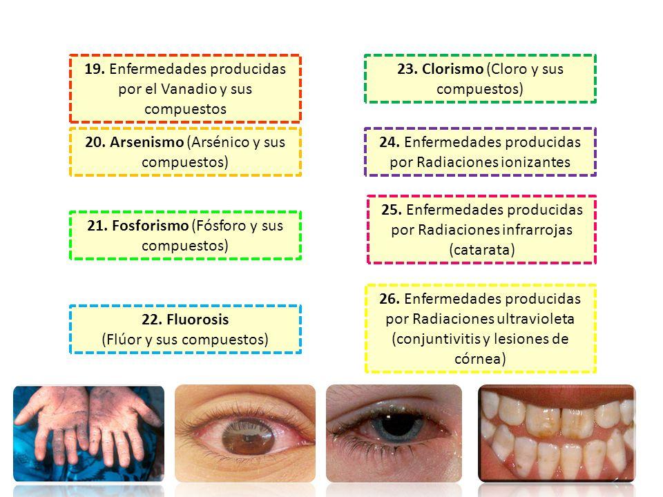 19. Enfermedades producidas por el Vanadio y sus compuestos
