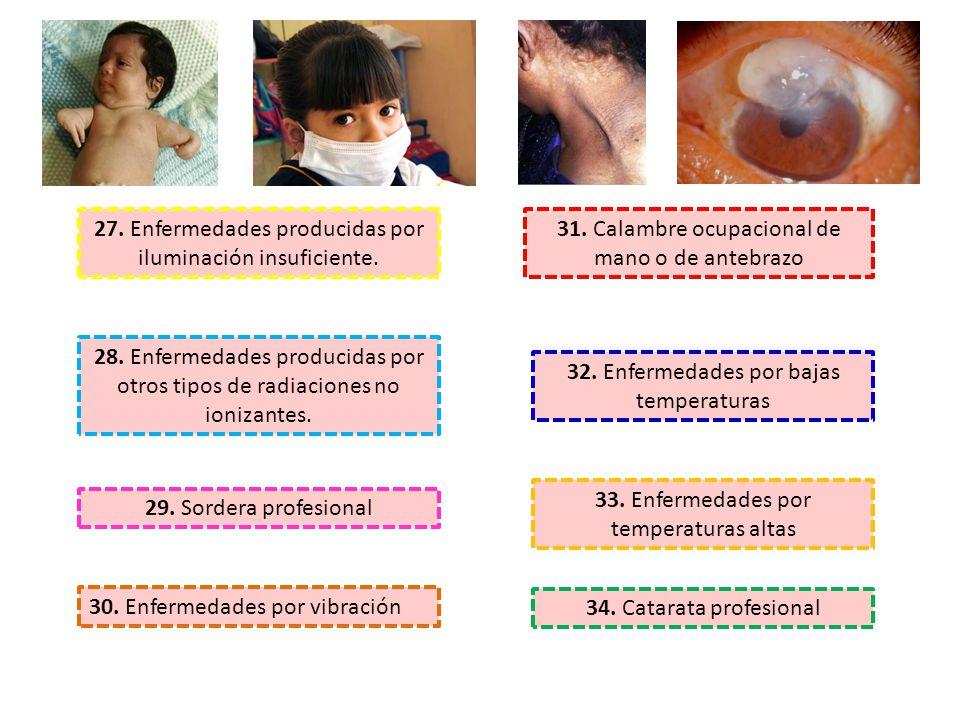 27. Enfermedades producidas por iluminación insuficiente.