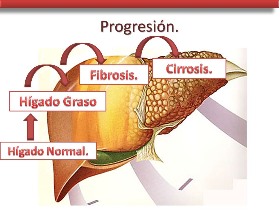 Progresión. Cirrosis. Fibrosis. Hígado Graso Hígado Normal.