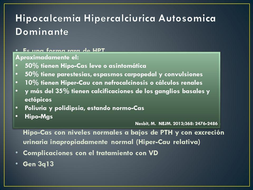 Hipocalcemia Hipercalciurica Autosomica Dominante