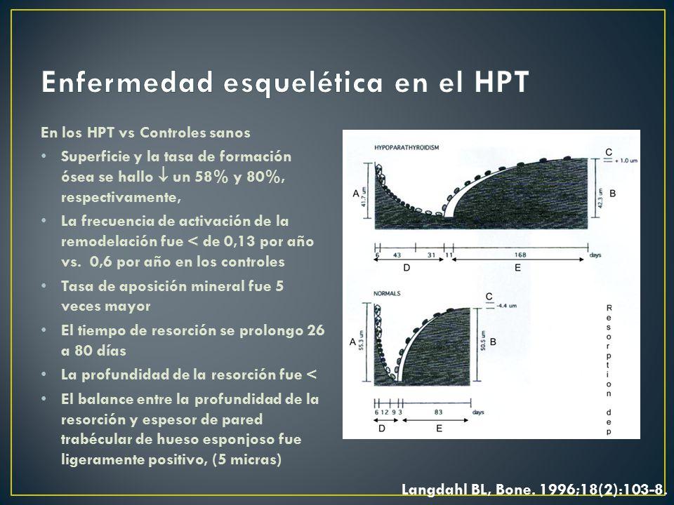 Enfermedad esquelética en el HPT