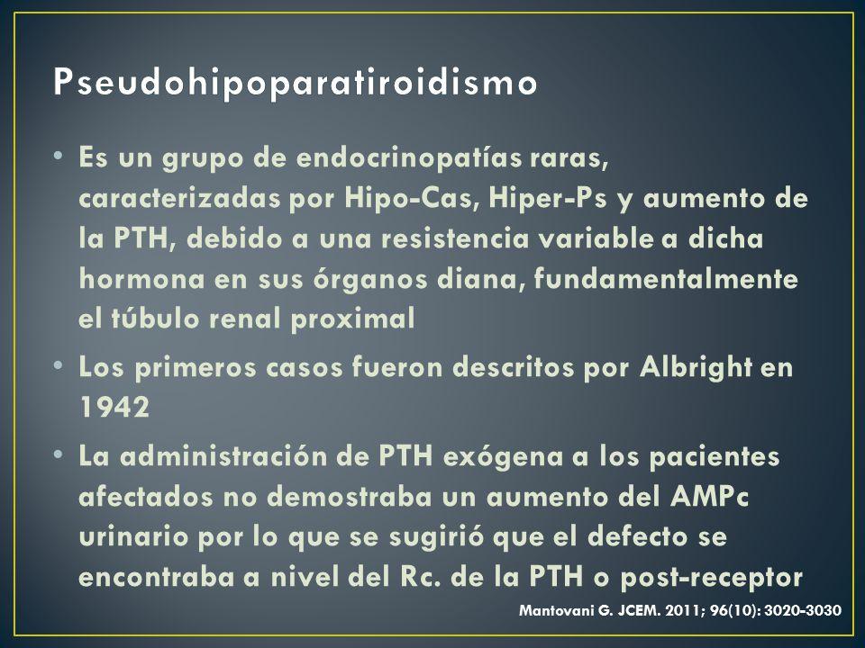 Pseudohipoparatiroidismo