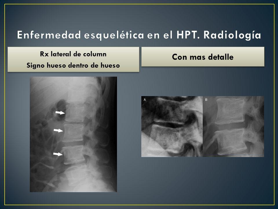 Enfermedad esquelética en el HPT. Radiología