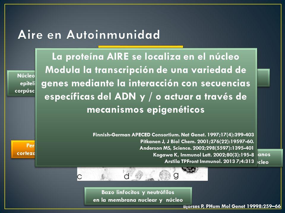 Aire en Autoinmunidad La proteína AIRE se localiza en el núcleo