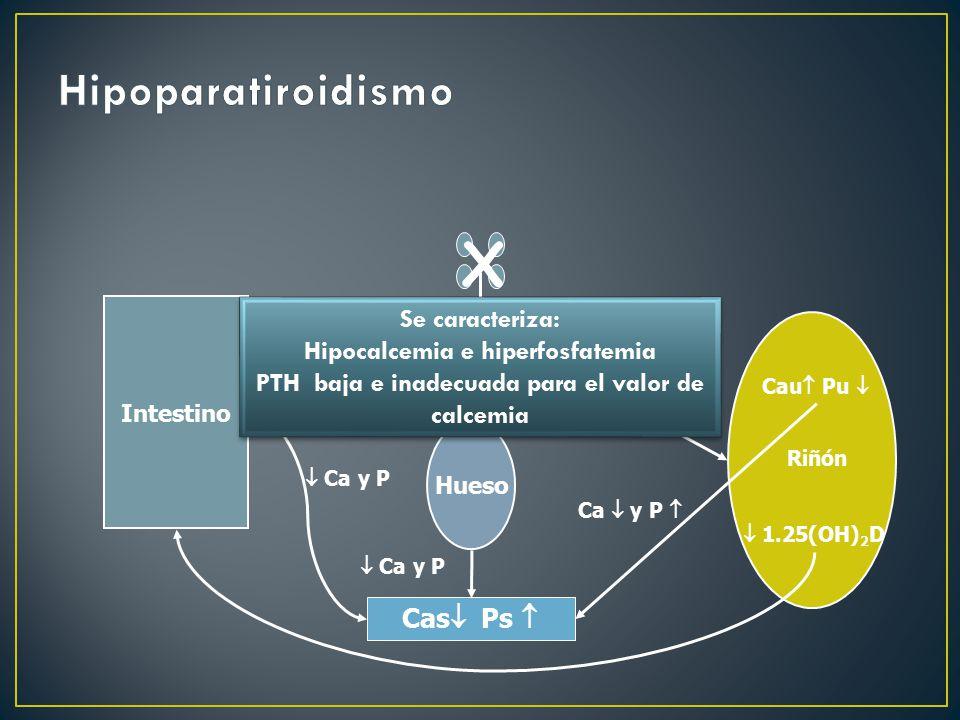 X Hipoparatiroidismo Se caracteriza: Hipocalcemia e hiperfosfatemia