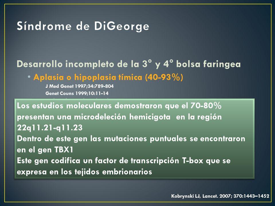 Síndrome de DiGeorge Desarrollo incompleto de la 3° y 4° bolsa faringea. Aplasia o hipoplasia tímica (40-93%)