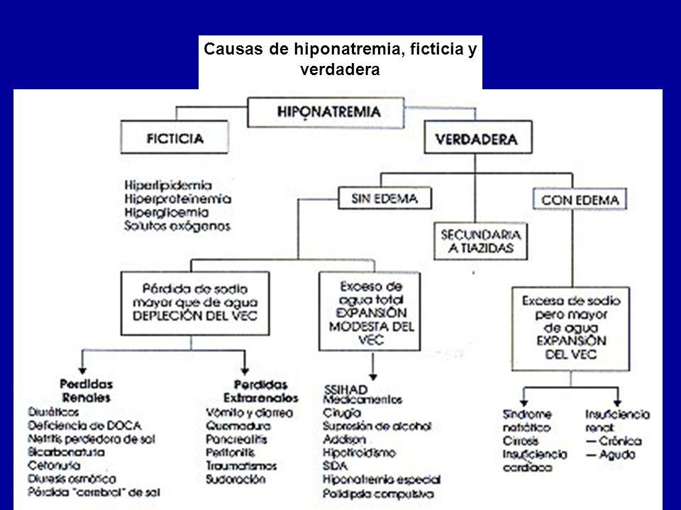 Causas de hiponatremia, ficticia y verdadera
