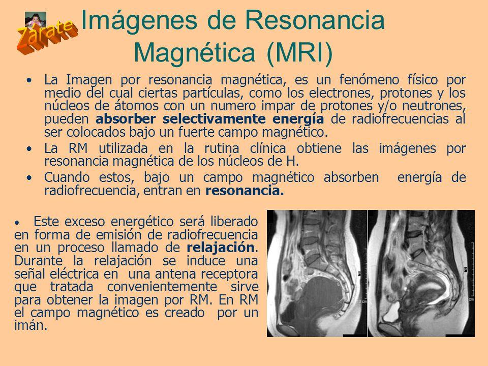 Fantástico Mri Anatomía Del Pene Bandera - Imágenes de Anatomía ...