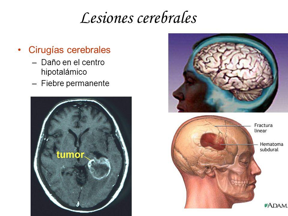 Lesiones cerebrales Cirugías cerebrales Daño en el centro hipotalámico