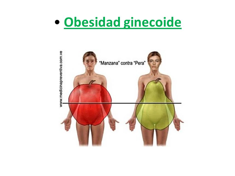 Obesidad ginecoide