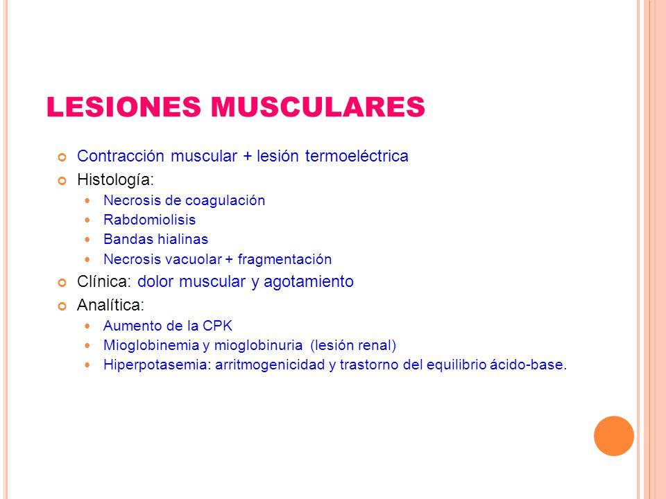 LESIONES MUSCULARES Contracción muscular + lesión termoeléctrica