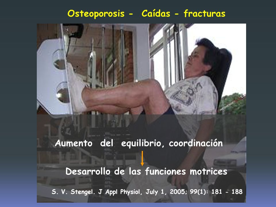 Osteoporosis - Caídas - fracturas