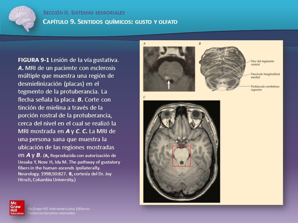 FIGURA 9-1 Lesión de la vía gustativa. A