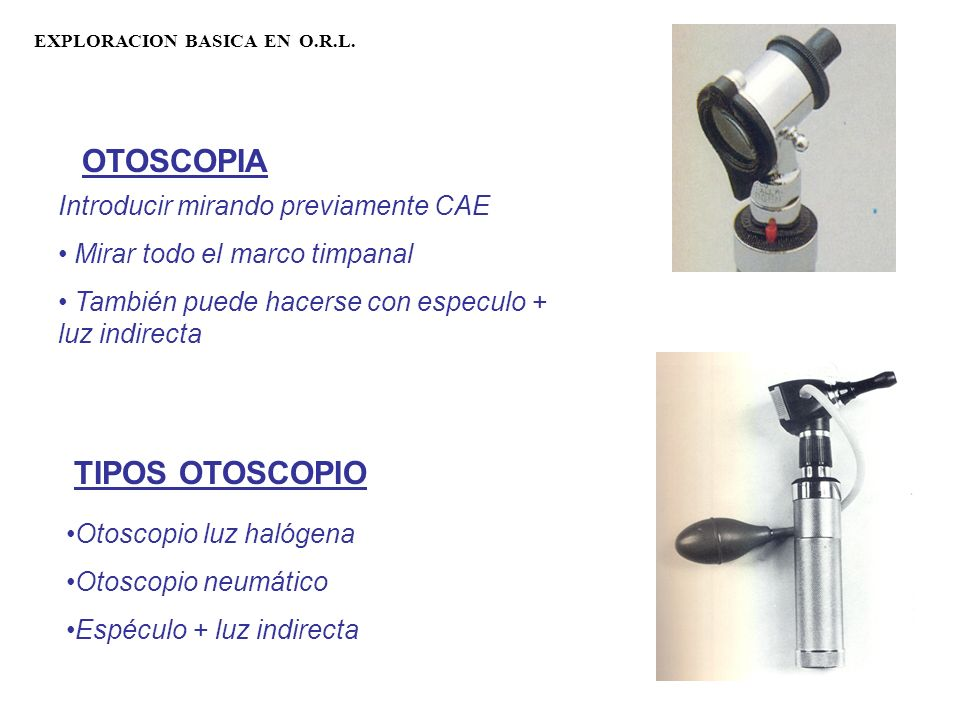 OTOSCOPIA TIPOS OTOSCOPIO Introducir mirando previamente CAE