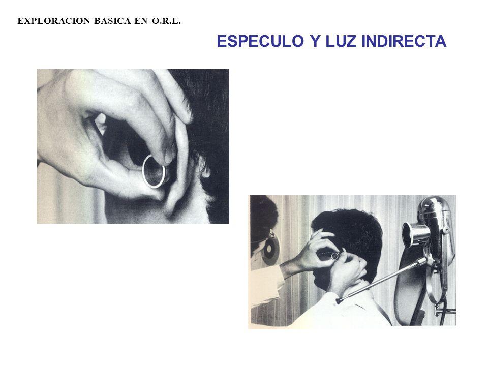 ESPECULO Y LUZ INDIRECTA