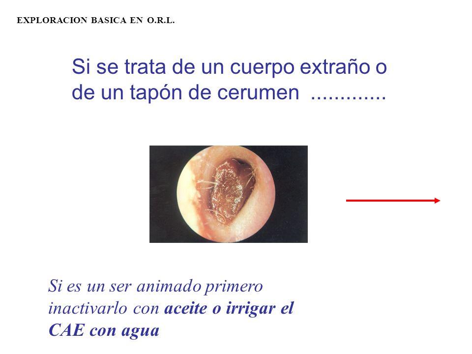 EXPLORACION BASICA EN O.R.L.