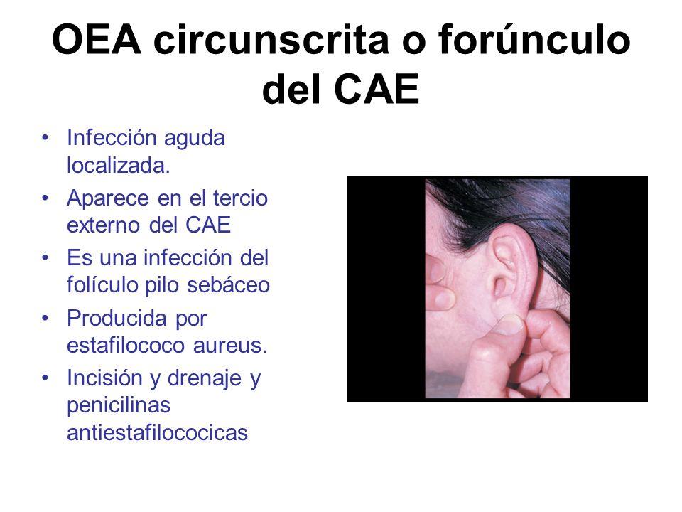 OEA circunscrita o forúnculo del CAE