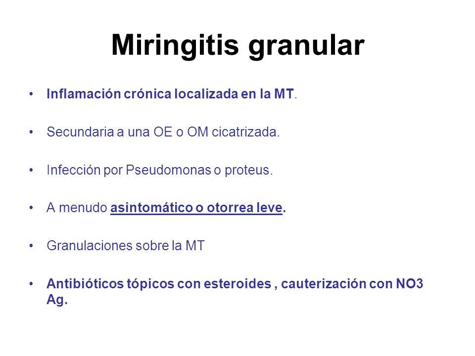 Miringitis granular Inflamación crónica localizada en la MT.