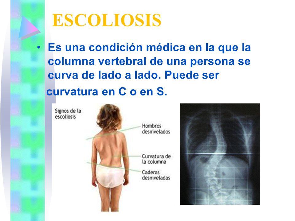 ESCOLIOSIS Es una condición médica en la que la columna vertebral de una persona se curva de lado a lado. Puede ser.
