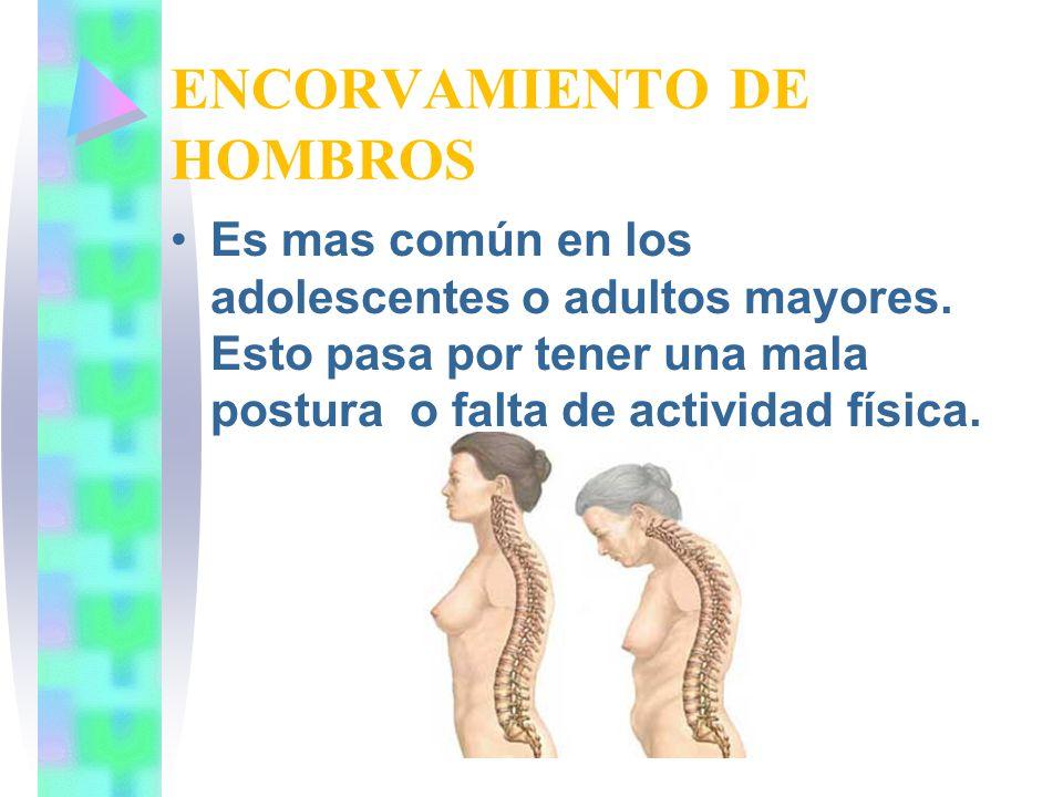 ENCORVAMIENTO DE HOMBROS