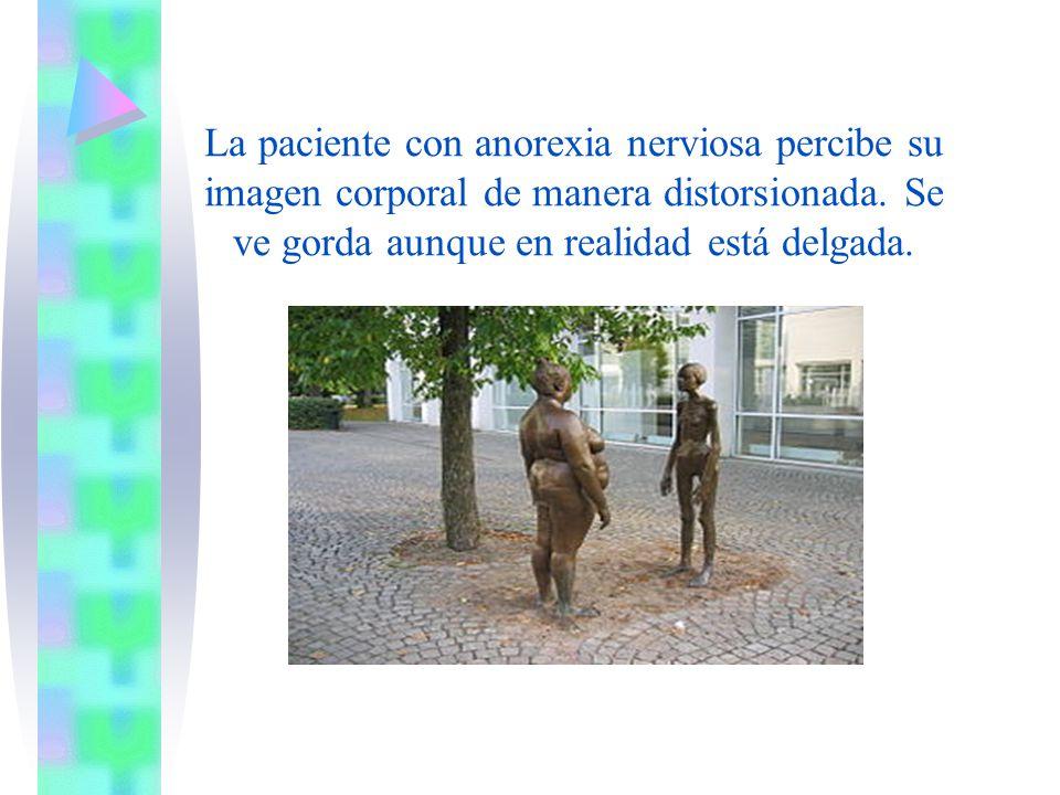 La paciente con anorexia nerviosa percibe su imagen corporal de manera distorsionada.