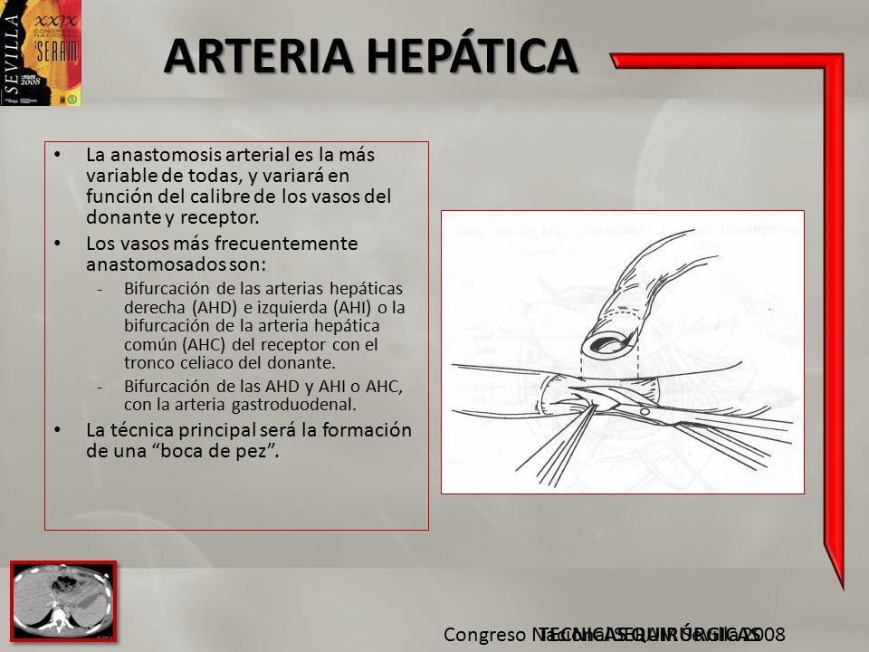 ARTERIA HEPÁTICA La anastomosis arterial es la más variable de todas, y variará en función del calibre de los vasos del donante y receptor.