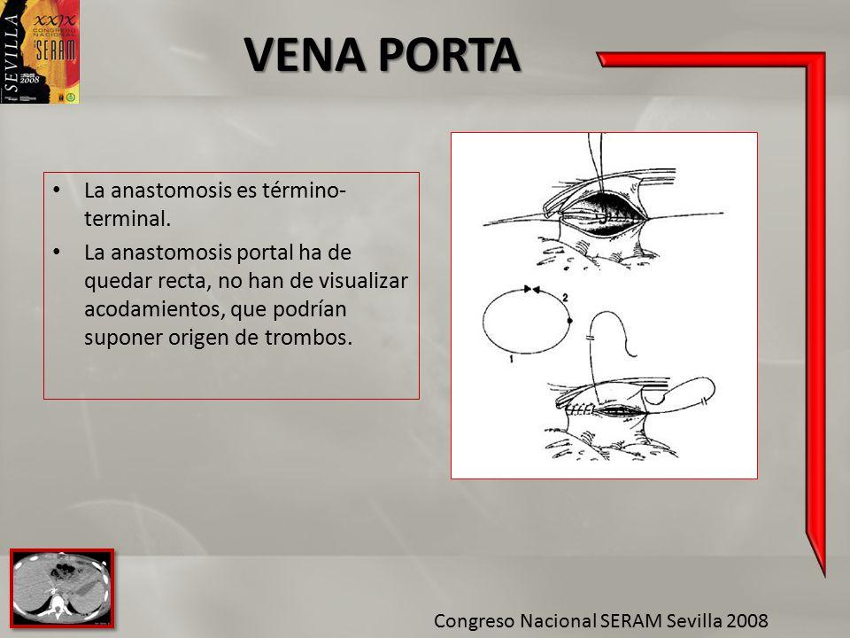 VENA PORTA La anastomosis es término-terminal.