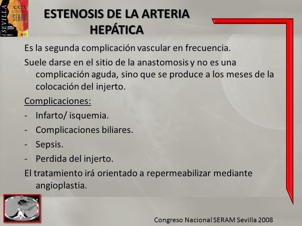 ESTENOSIS DE LA ARTERIA HEPÁTICA