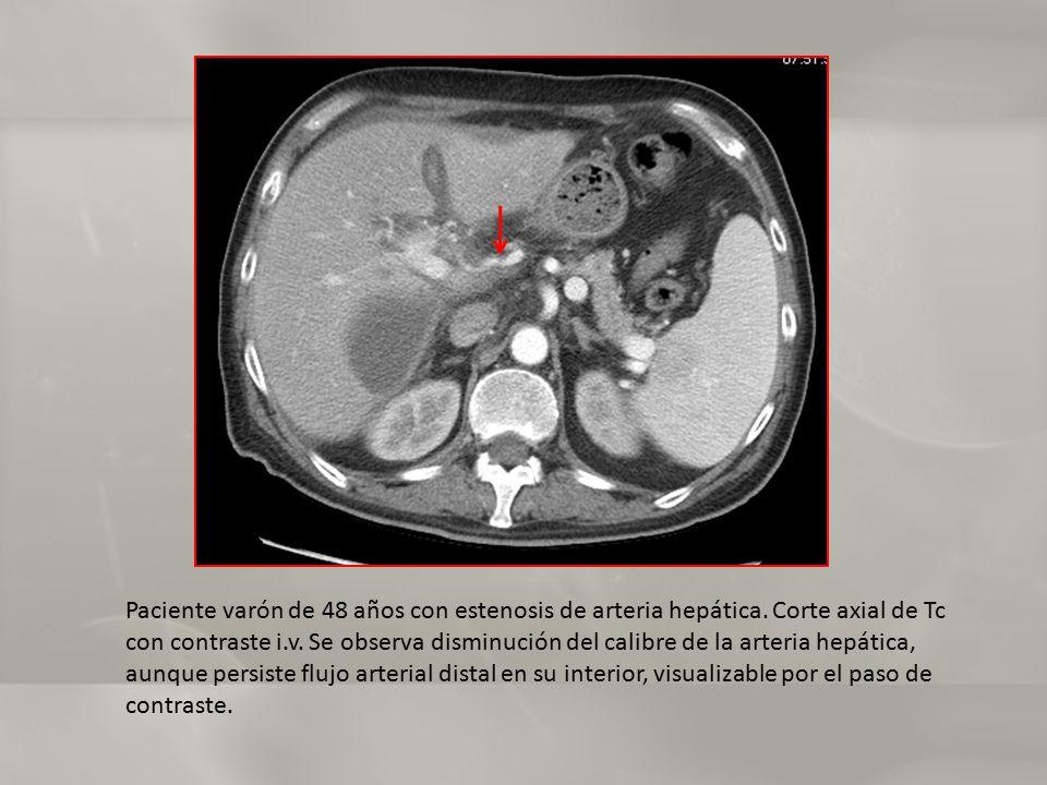 Paciente varón de 48 años con estenosis de arteria hepática