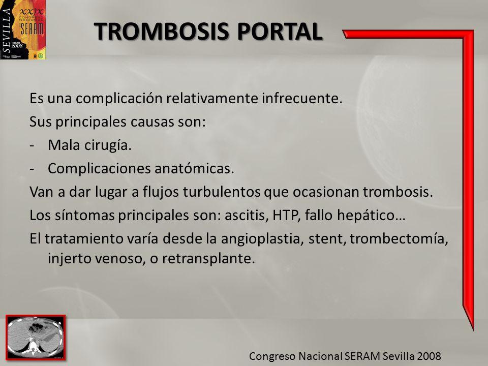 TROMBOSIS PORTAL Es una complicación relativamente infrecuente.
