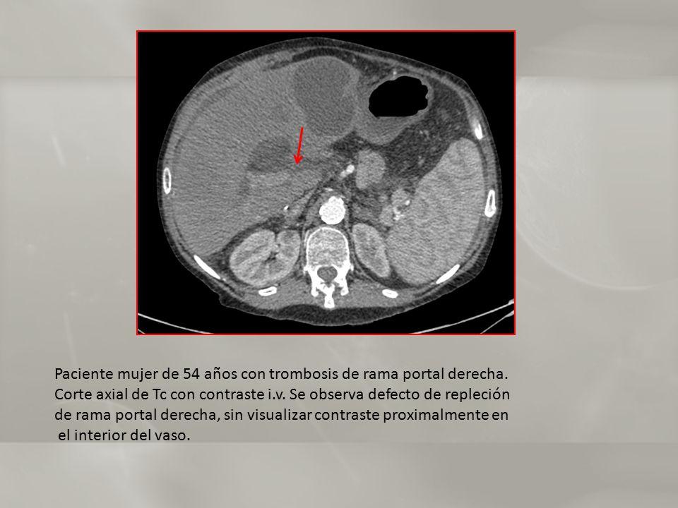 Paciente mujer de 54 años con trombosis de rama portal derecha.