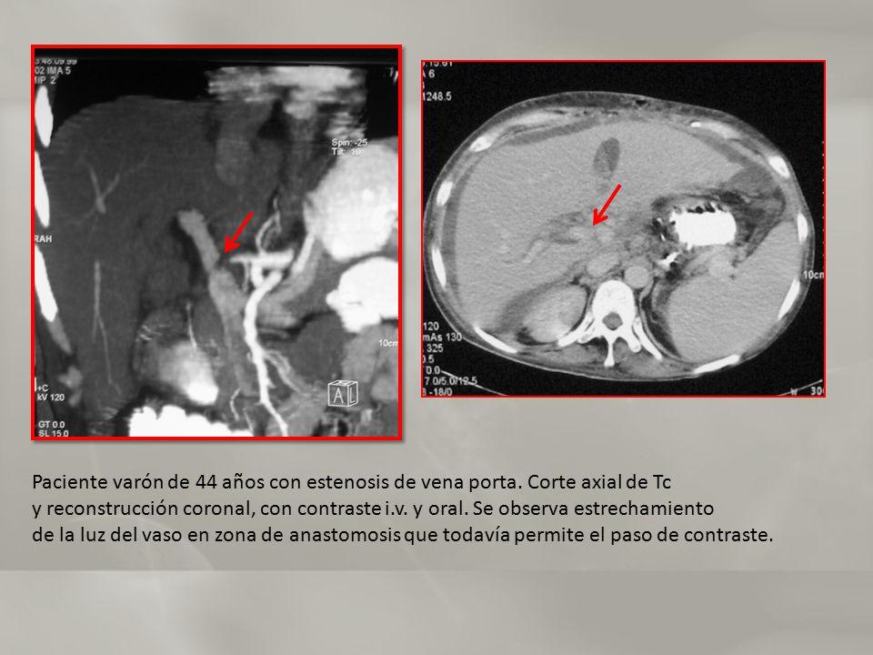 Paciente varón de 44 años con estenosis de vena porta