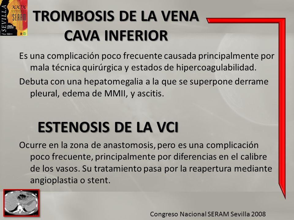 TROMBOSIS DE LA VENA CAVA INFERIOR