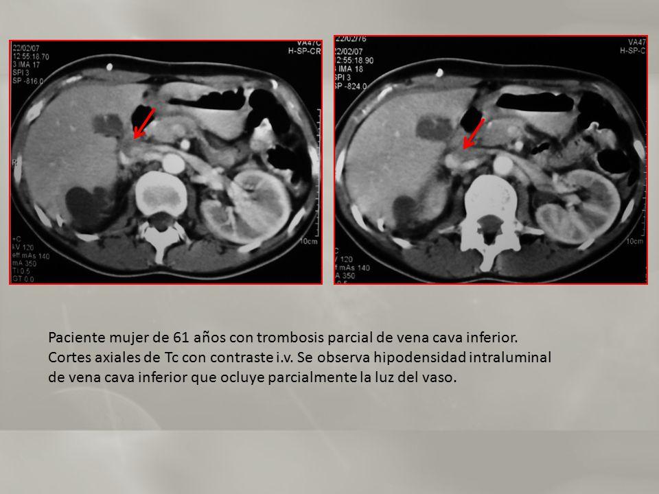 Paciente mujer de 61 años con trombosis parcial de vena cava inferior.