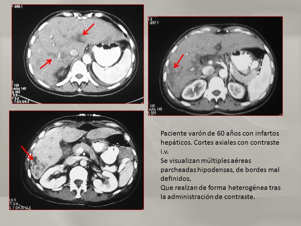 Paciente varón de 60 años con infartos hepáticos