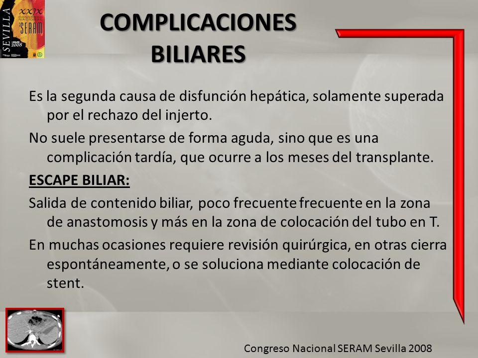 COMPLICACIONES BILIARES