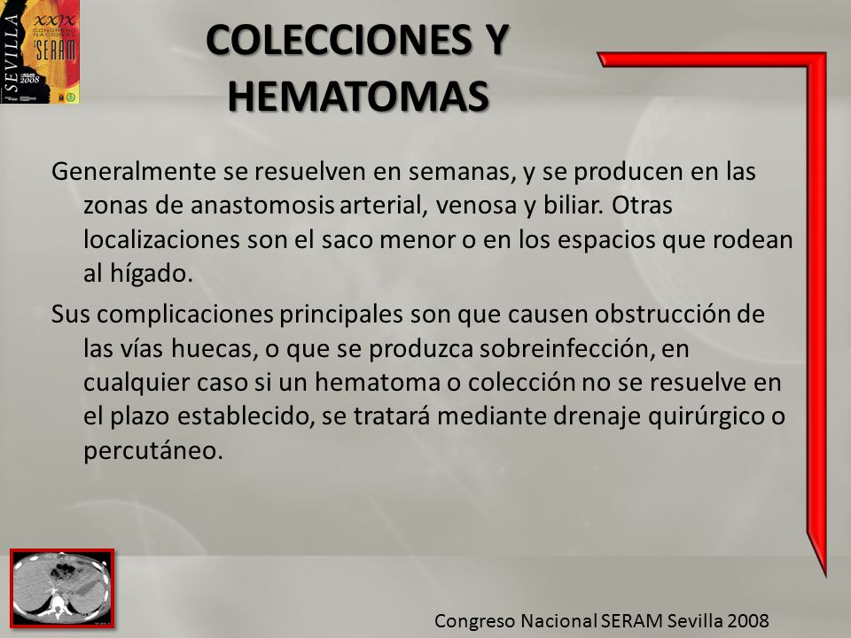 COLECCIONES Y HEMATOMAS