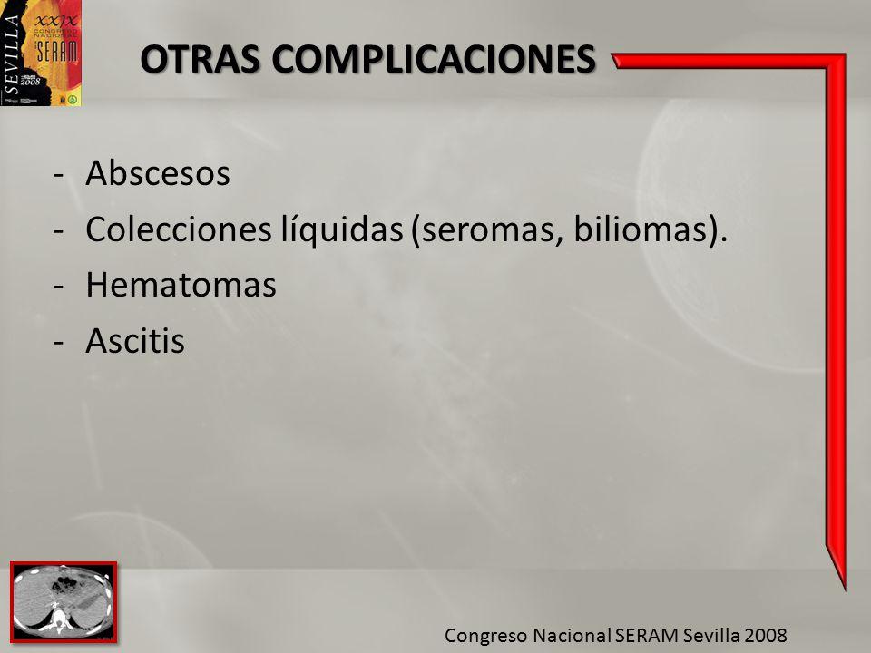 Colecciones líquidas (seromas, biliomas). Hematomas Ascitis