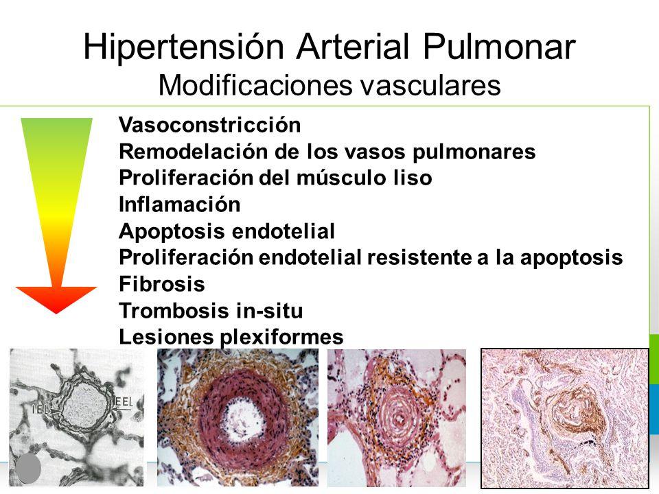 Hipertensión Arterial Pulmonar Modificaciones vasculares