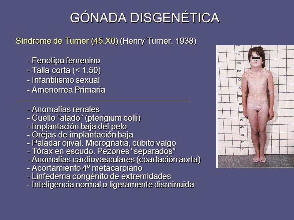 GÓNADA DISGENÉTICA Síndrome de Turner (45,X0) (Henry Turner, 1938)