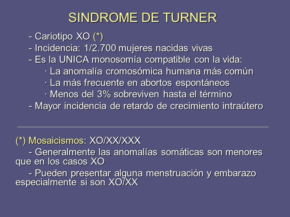SINDROME DE TURNER - Cariotipo XO (*)
