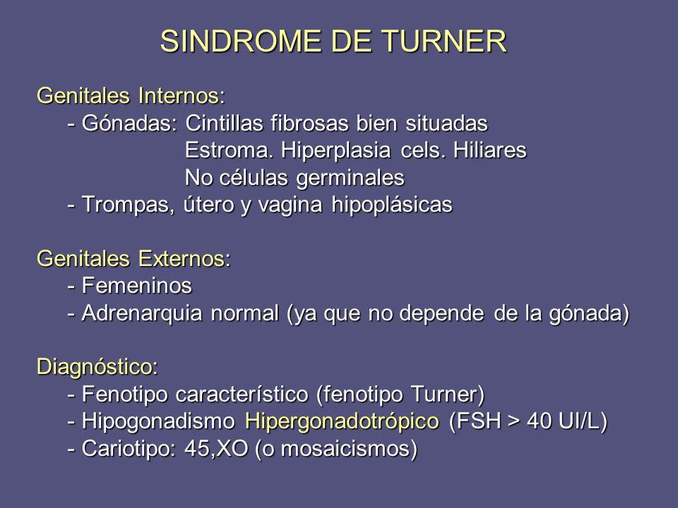 SINDROME DE TURNER Genitales Internos: