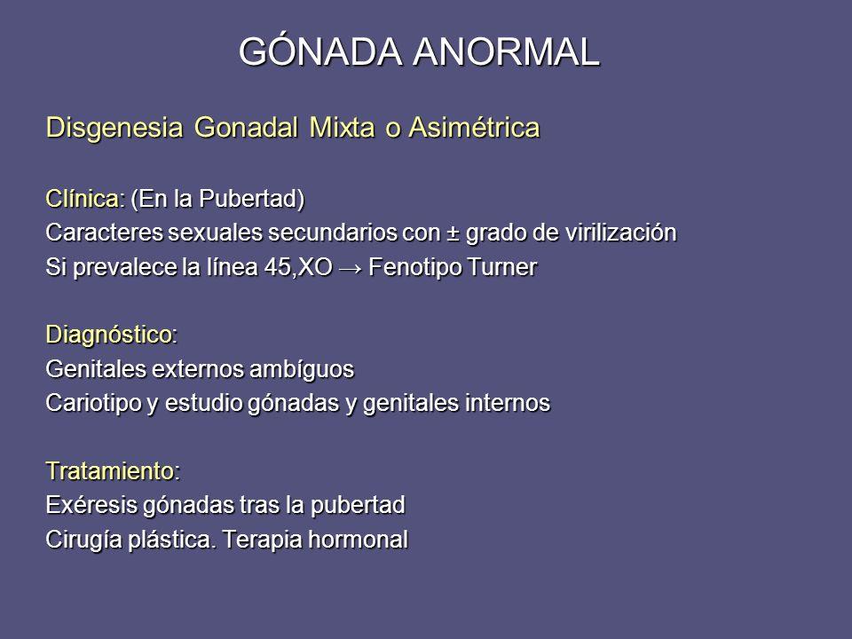 GÓNADA ANORMAL Disgenesia Gonadal Mixta o Asimétrica