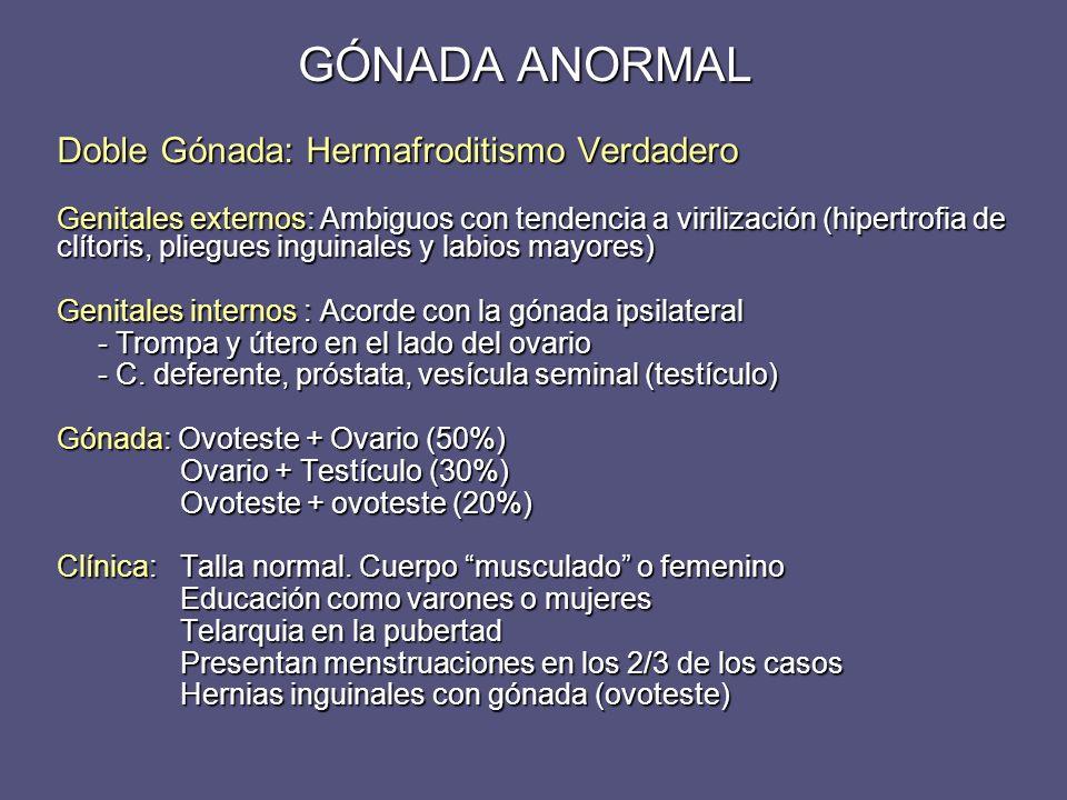 GÓNADA ANORMAL Doble Gónada: Hermafroditismo Verdadero