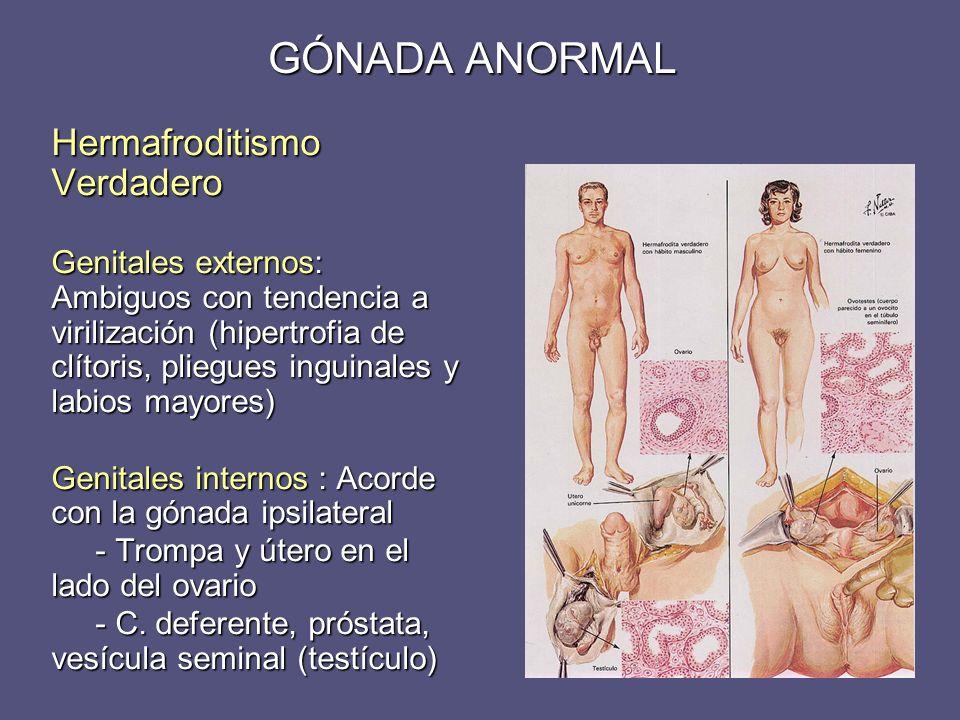 GÓNADA ANORMAL Hermafroditismo Verdadero