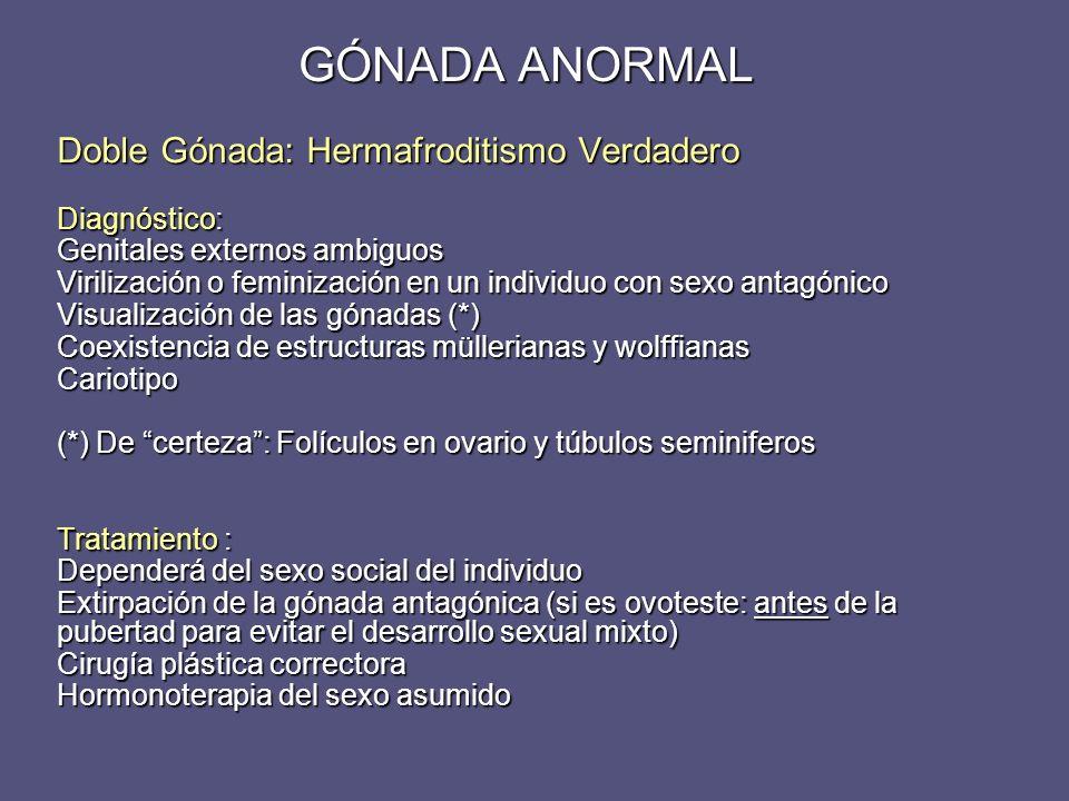 GÓNADA ANORMAL Doble Gónada: Hermafroditismo Verdadero Diagnóstico: