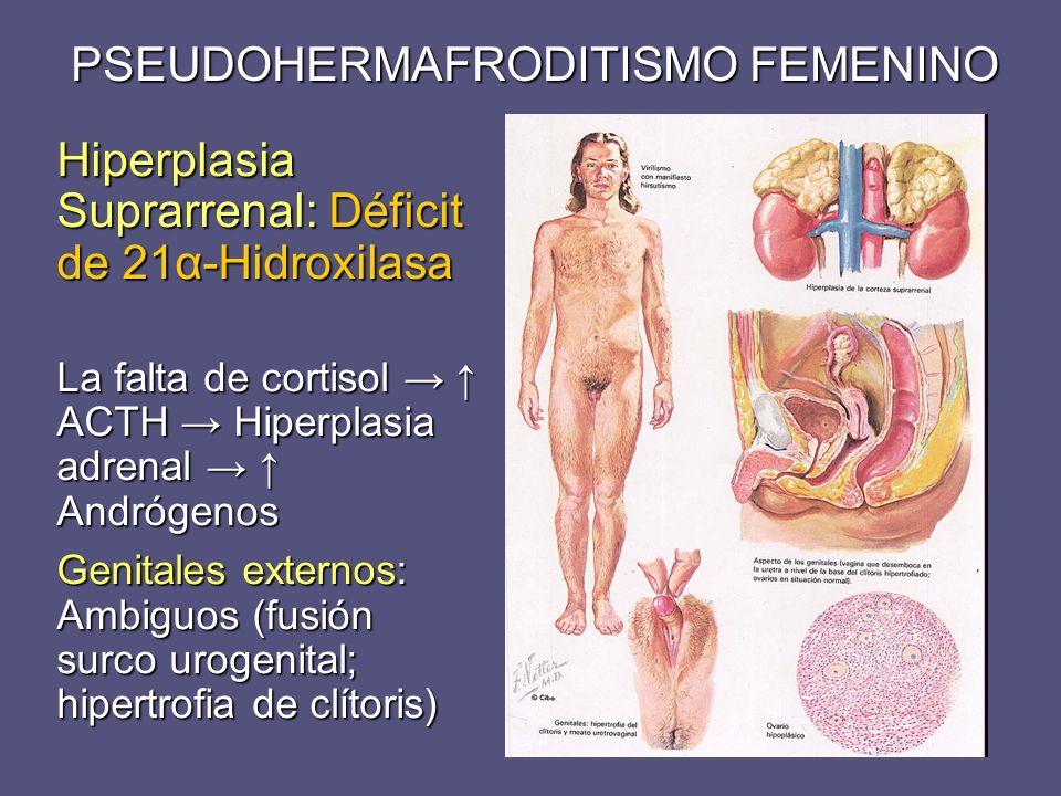 PSEUDOHERMAFRODITISMO FEMENINO